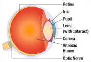 Cataract in Eyeball