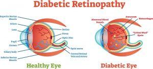 Diabetic_Retinopathy by AOA